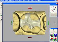 スキャンデータを基に設計する画像