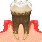 歯周病・定期健診・クリーニング