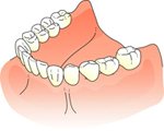 人工歯装着画像