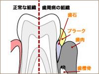 歯周病の説明画像